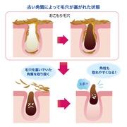 \毛穴レス&むき卵肌!角質ケア美容水で叶えましょ!/ベリっと剥がすケアではなく塗るだけケアで簡単・優しい・嬉しい!