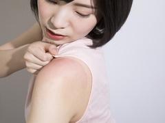 日焼け後の肌に湿疹が!はれや痛みを長引かせないケアとは?
