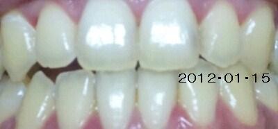 歯のホワイトニング の画像