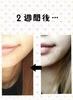 2014-11-30 16:15:08 by ★★YURI★★さん